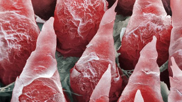 A high energy beam scanner, called a scanning electron micrograph, was used to capture this image, which shows the surface of a human tongue. The protruding objects, called filiform papillae, can sense pressure. The flaky appearance of the papillae results from the fact that they are constantly shedding their skin to increase sensitivity.