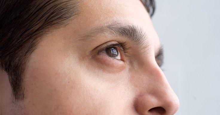 """Sintomas do tumor de seio maxilar . Os seios maxilares ficam atrás das maçãs do rosto e são frequentemente acometidos por tumor. O """"The National Cancer Institute"""" define um tumor como uma massa de tecido neoformado, causada por novas células produzidas quando não são necessárias."""