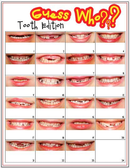 Yearbook Ideas: Guess Who? Tooth Edition