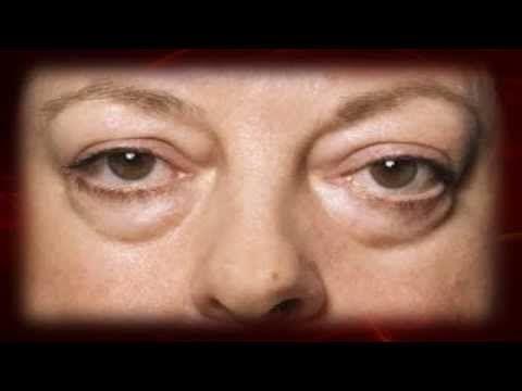 Las bolsas en los ojos el indicio de la enfermedad