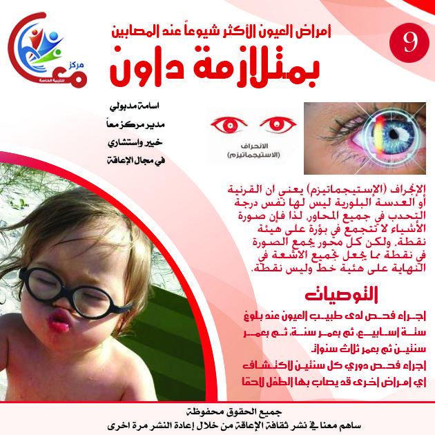 أمراض العيون عند المصابين بمتلازمة داون Poster Movies Ale