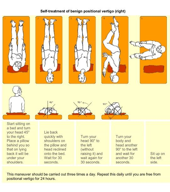 Epley Maneuver For Right Side From Stanford Primary