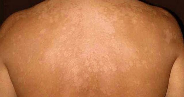 Ako prírodne vyliečiť mykózy kože, keď nechcete chémiu od lekára