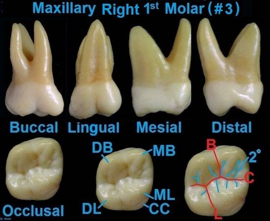 Dentaltown - Dental Anatomy and Tooth Morphology. Dental Anatomy Maxillary Right 1st Molar (#3)