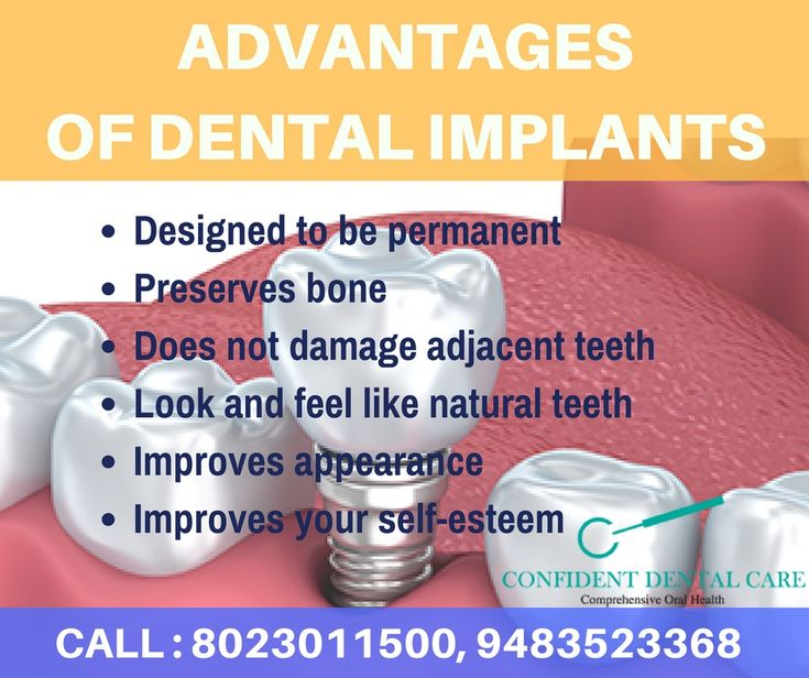 A dental implant is an artificial tooth root that is placed into your jaw to hold a replacement tooth or bridge. Book an appointment today Call at +91 8023011500, +91 9483523368 Visit: https://goo.gl/z6uwRM #dental_implants #dental_care_tips #best_dental_treatment