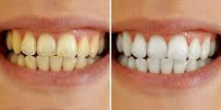 Extra White Teeth With Only 3 Natural Ingredients