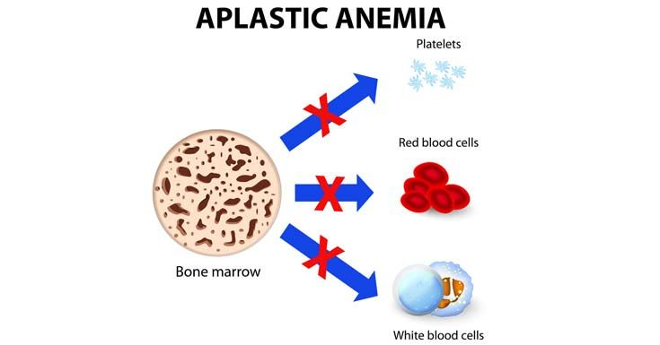 Getting to know Aplastic Anemia