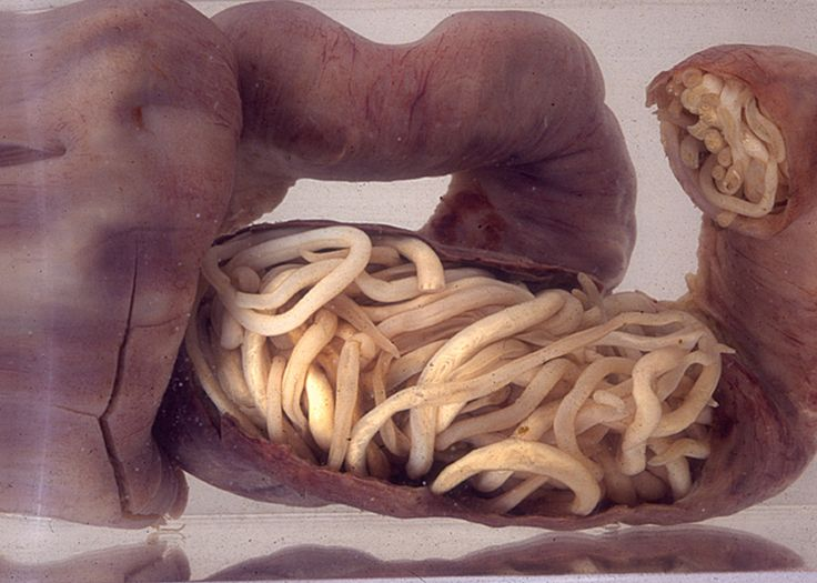 Intestinal worms can compel their host's microbiome to do its bidding, new research finds.