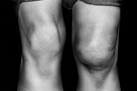 Your knee is swollen and you don't know why.  What are your next steps?   I see many people in my office with a swollen knee. Swelling in the knee is  comm