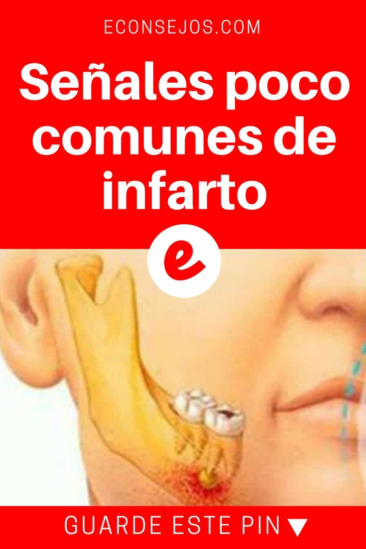 Señales de infarto | Señales poco comunes de infarto | Si cree que el dolor de pecho o en el brazo son los síntomas más comunes de un infarto, se equivoca...