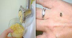 Secretele: Dizolva pietrele la rinichi cu o lingura din acest amestec