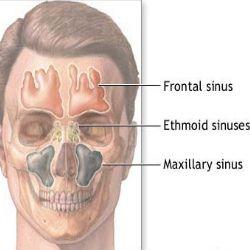 Sinusitis Cures Natural Sinus Relief