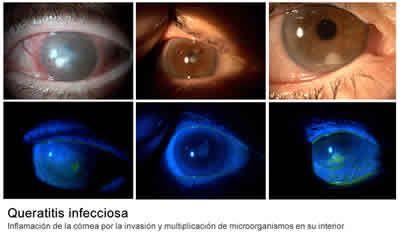 Se trata de la inflamación de la córnea por la invasión y multiplicación de microorganismos en su interior. http://www.cirugiaocular.com