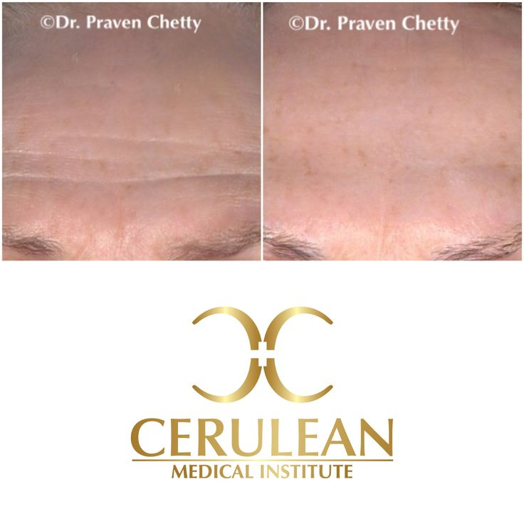 Botox treatment of forehead wrinkles by Dr. Praven Chetty at Cerulean Medical Institute in Kelowna, BC. Botox is a safe and effective anti-wrinkle treatment that delivers a youthful appearance with zero downtime. #Botox #wrinkles #DrPravenChetty #CeruleanMedicalInstitute #Kelowna