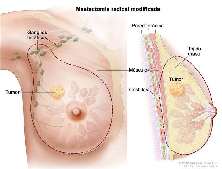 Mastectomía radical modificada; el dibujo de la izquierda muestra la extirpación de la mama, todos los ganglios linfáticos debajo del brazo o la mayoría de estos, el revestimiento de los músculos del pecho y, a veces, parte de los músculos de la pared torácica. El dibujo de la derecha muestra una sección transversal de la mama que incluye la pared torácica (costillas y músculos), el tejido graso y el tumor.