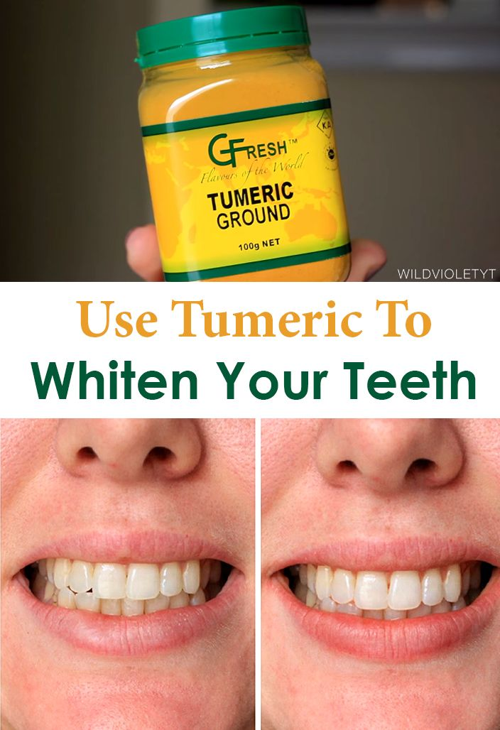 Why might Turmeric whiten teeth and how effective is it ...