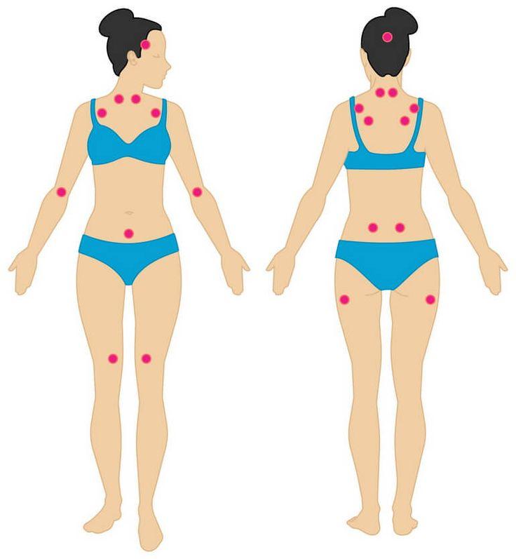 Фибромиалгия – что это такое, как лечить