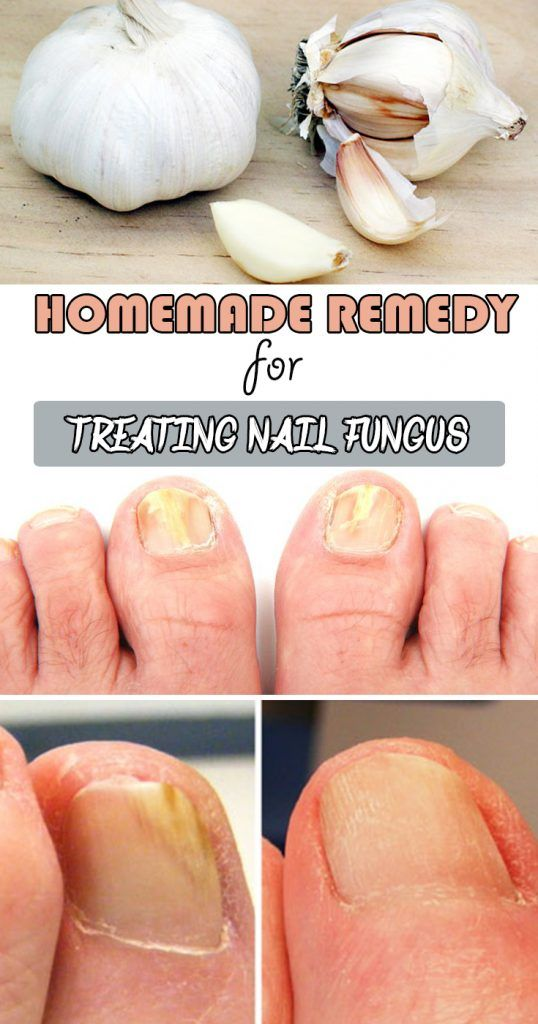 Homemade remedy for treating nail fungus