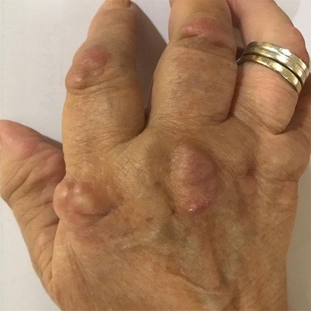 #nódulos #reumatoides #rheumatoidarthritis