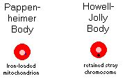 Pappenheimer (e.g. in sideroblastic anemia) vs. Howell-jolly body (e.g. in sickle cell)