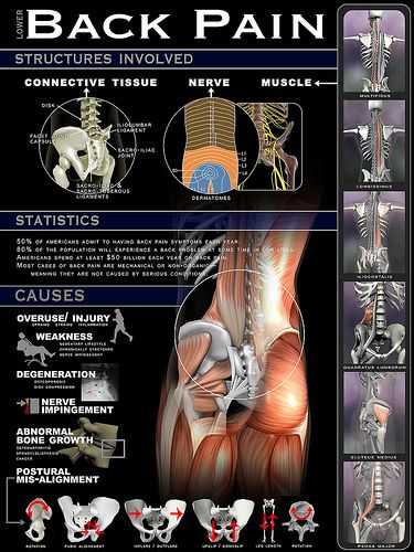 Infographic by www.realbodywork.com/ Featured on www.a-health-blog.com/lower-back-pain-infographic.html
