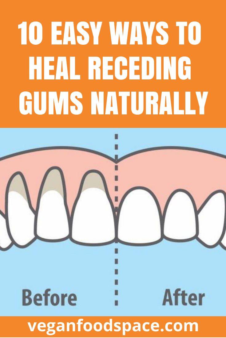 how to fix receding gums naturally