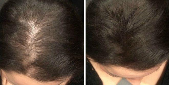 Попадая на волосы, касторка благотворно воздействует на волосяные луковицы. Она бережно окутывает каждый волосок, придавая им гладкость и ухоженность. Также это масло эффективно влияет на спящие луковицы, стимулируя их активный рост. Узнай в нашей статье, как правильно ухаживать за волосами с помощью этого средства … Как ускорить рост волос Касторовое масло для длинных ресниц Наносить …