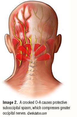 Occipital Neuralgia Headaches Addressing the O-A Joint