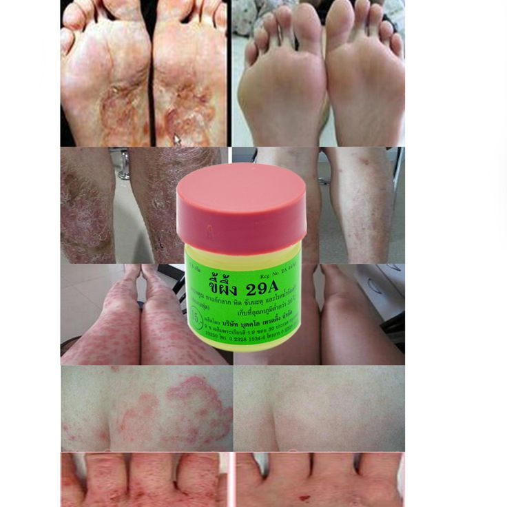 Heißer verkauf 1 Flasche Thailand Antibakterielle Gesundheitswesen Fußpilz Ekzeme Juckreiz Gegen alle Arten Hauterkrankungen Psoriasis