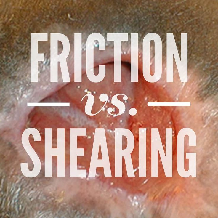 Friction vs. Shearing in Wound Care: What's the Difference?