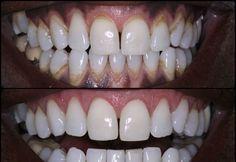 Mi-am curatat singura dintii acasa, in doar o saptamana! Niciodata nu i-am avut atat de albi! Uite ce am baut in fiecare dimineata