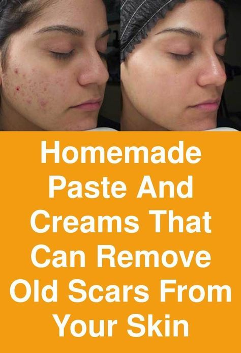 Homemade paste and creams that can remove old scars from your skin