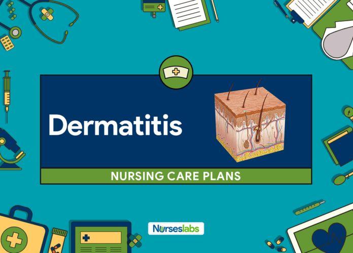 Dermatitis Nursing Care Plans