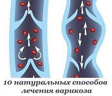 10 натуральных способов лечения варикоза