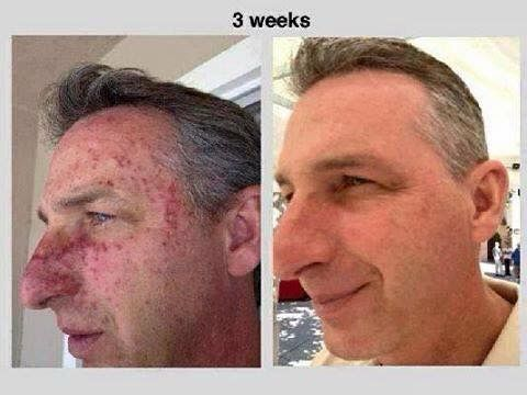 Not just for the ladies guys!  A psoriasis sufferer using Luminesce Cellular Rejuvenation Serum for 3 weeks!  The results are incredible.