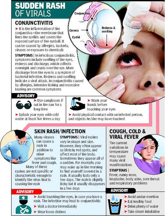 Several viral infections are making their presence felt among Mumbaikars, besides the killer dengue. City doctors report a surge in respiratory infections, conjunctivitis and skin rashes. What's more, experts say many patients have reported more than one problem.