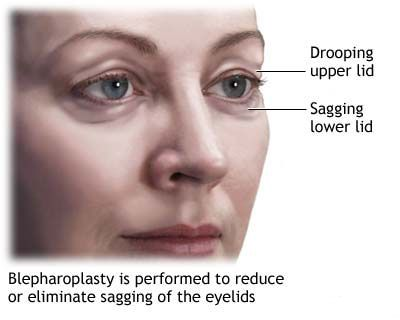 Blepharoplasty low price upper lower eyelid surgery abroad India