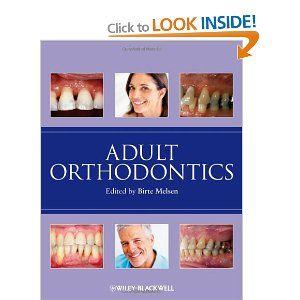 Adult Orthodontics: Amazon.co.uk: Birte Melsen: Books