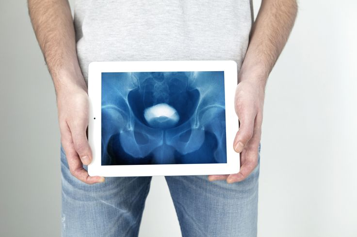 Read about the first patient in New Zealand to get Augmenix's SpaceOAR treatment, which protects men from rectal damage after prostate cancer radiotherapy.