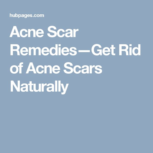 how to get rid of teenage acne scars