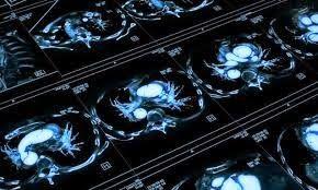 ganodermamushroomblog: Take Ganoderma can reduce cancer cells and tumor r...