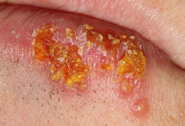 Herpesviruses: Test Your Knowledge