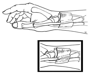 One of the sharp pains of the wrist is DeQuervain's Tendinitis. It is caused when the tendons situated near the thumb are swollen and irritated. If you have DeQuervain's Tendinitis, then movements like making a fist, holding things, or turning the wrist may be painful.