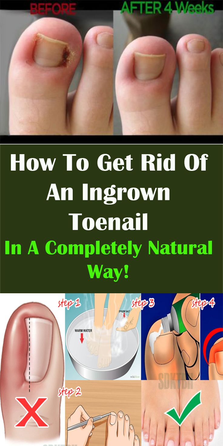 Natural Way To Treat Ingrown Toenail