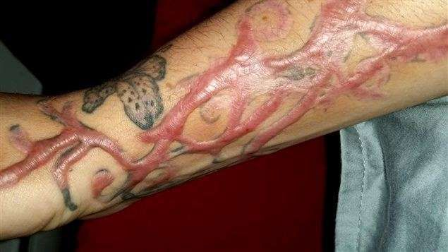 Des clients de Bye Bye Tattoo qui ont subi des brûlures risquent de ne jamais être dédommagés, car la propriétaire du salon de détatouage a fait faillite, et la compagnie n'a plus d'argent. Entre-temps, Carmen Tassé a ouvert une autre entreprise dans le même domaine.