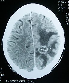 Cerebral edema - Wikipedia