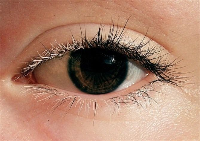 Poliosis is the decrease or absence of melanin in head hair, eyebrows, or eyelashes. Poliosis of the eyelashes has been described in several ophthalmic conditions, including blepharitis, sarcoidosis, sympathetic ophthalmia, herpes zoster, Vogt-Koyanagi-Harada (VKH) syndrome, vitiligo, and tuberous sclerosis.