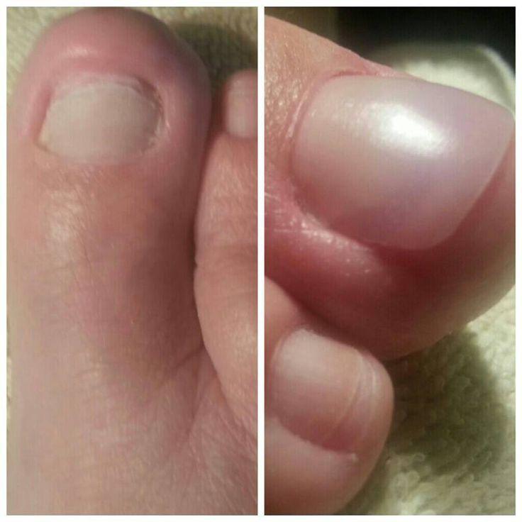 Los métodos públicos del tratamiento del hongo de la piel de los pies