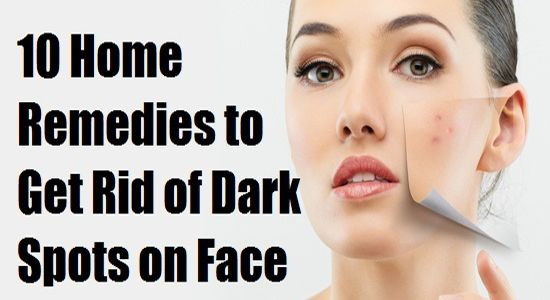 Top 10 Home Remedies for Black Spots on Your Face #top10 #homeremedies #darkspots #face