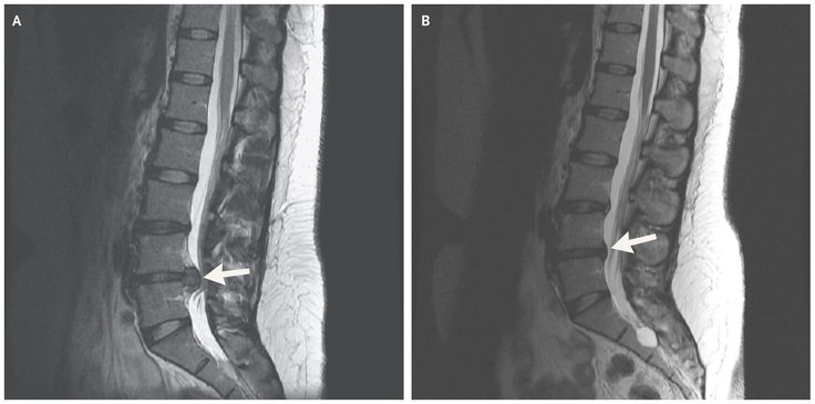 Images in Clinical Medicine from The New England Journal of Medicine — Resolution of Lumbar Disk Herniation without Surgery